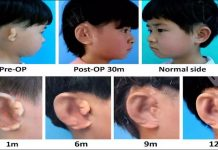 Breakthrough! Five children receive new ears grown from their own cells